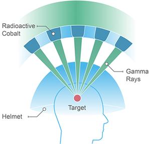radiosurgery graphic